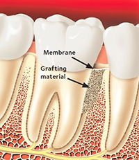 Grafting material is placed over the bone. A membrane covers the grafting material.