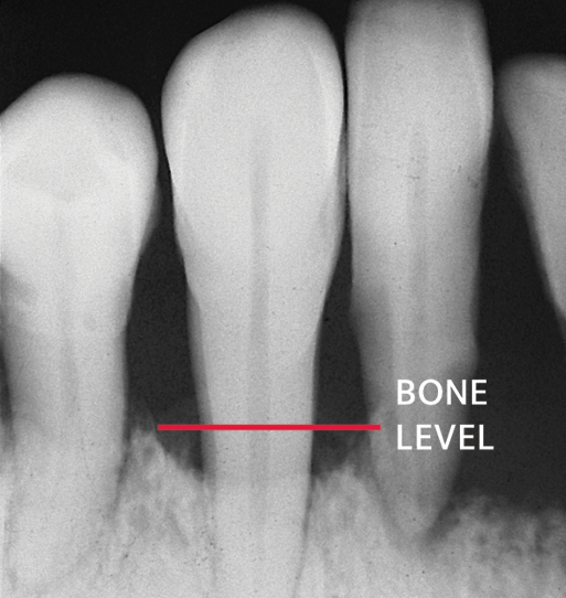 X-ray showing periodontal bone loss.