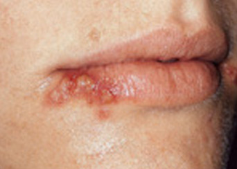Mouth Sores and Spots