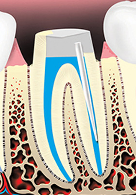 A metal or plastic rod or post may be placed in the root canal to support the crown.