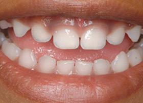 Healthy baby teeth