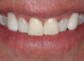 After in-office whitening